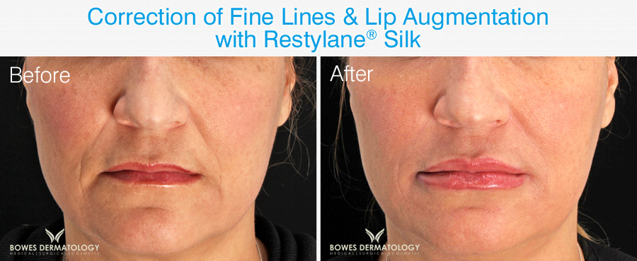 Restylane Silk before and after photos.