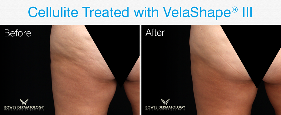 Cellulite treated with Velashape