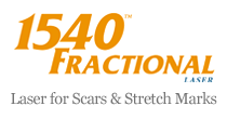 Laser for scars & stretch marks Miami