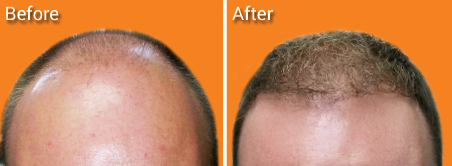 Men before and after photo for Neograft hair trasnspantation procedure in Miami.