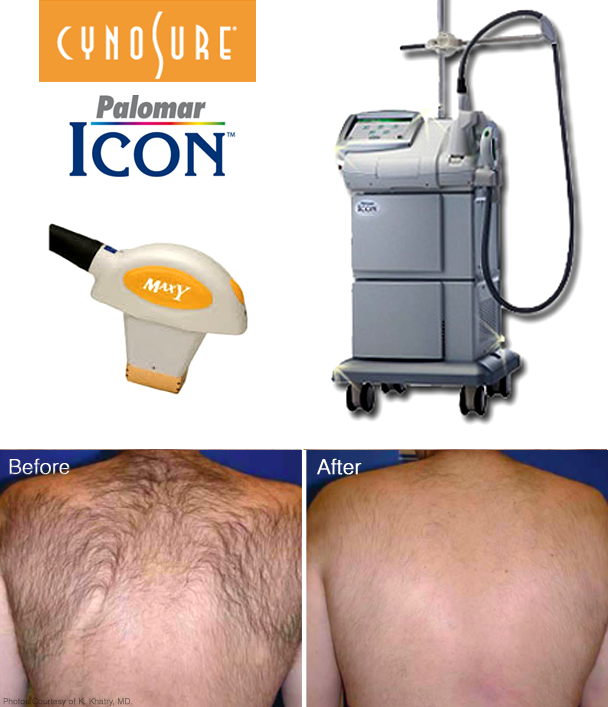 CynoSure/Palomar Icon® MaxYs™