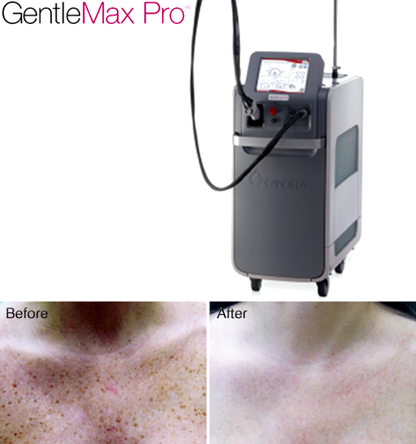 Lasers for Dark Spots