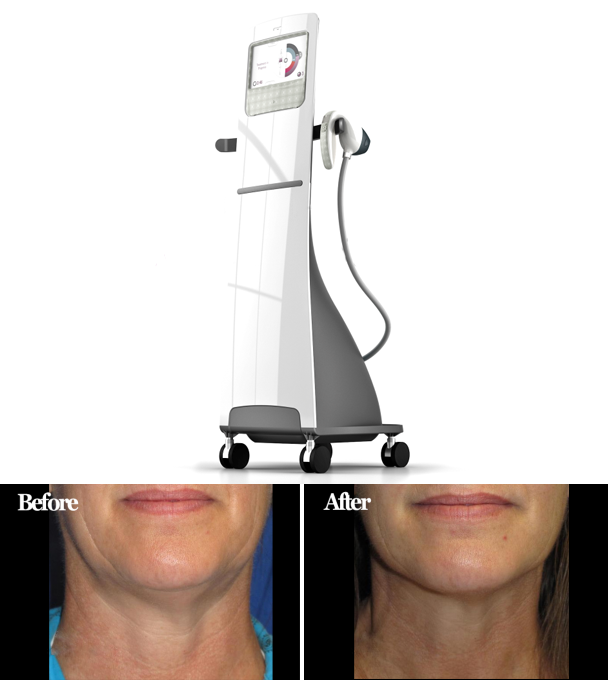 Non Invasive Neck Tightening