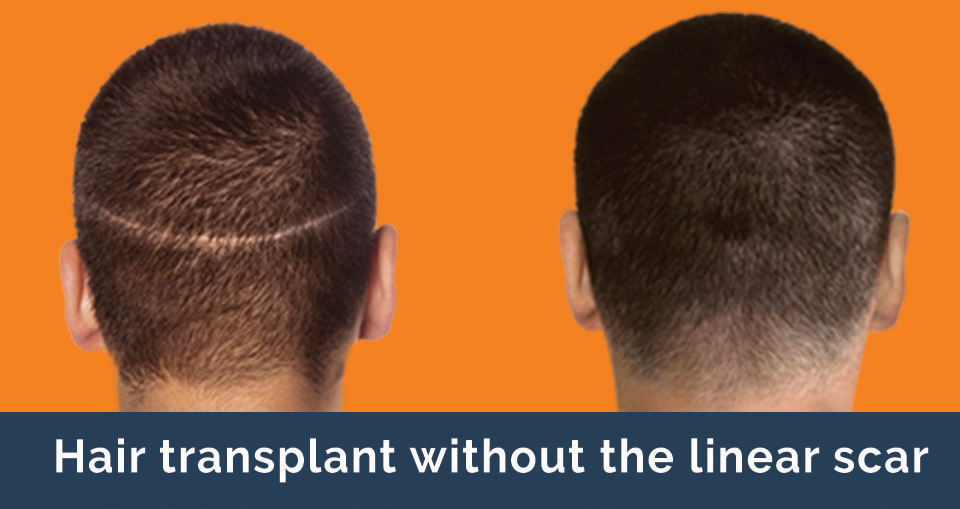The least invasive procedure for hair restoration at Bowes Dermatology by Riverchase in Miami, Florida.