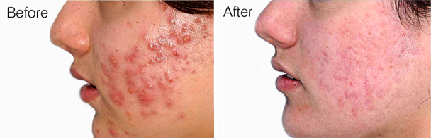 PDT Miami, Miami Dermatologist, Acne Treatment Miami
